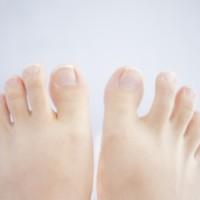 意外と多い「足のトラブル」!足のトラブルに対する症例紹介!